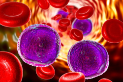 مقاله سرطان خون (لوسمی)